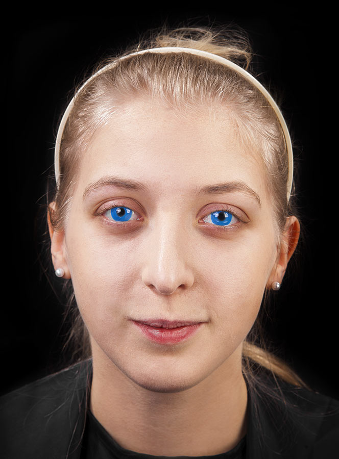 1. Kontaktlinsen