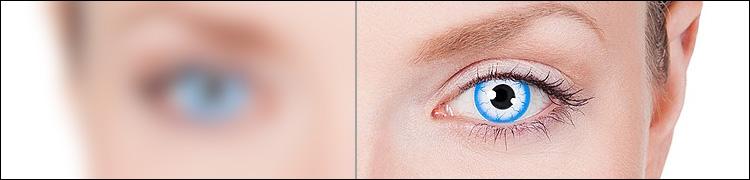 Farbige Kontaktlinsen mit Sehstärke